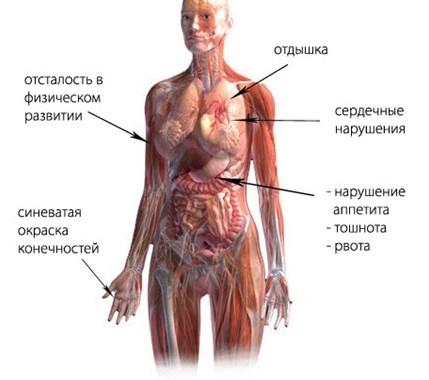 симптомы НЦД