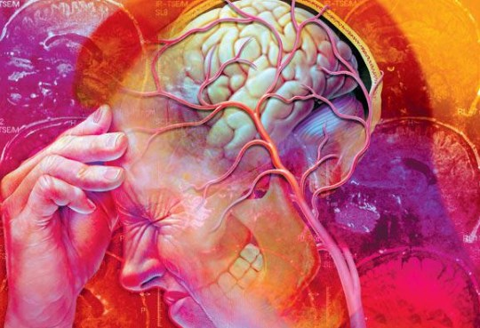 нейроциркуляторная дистония головного мозга