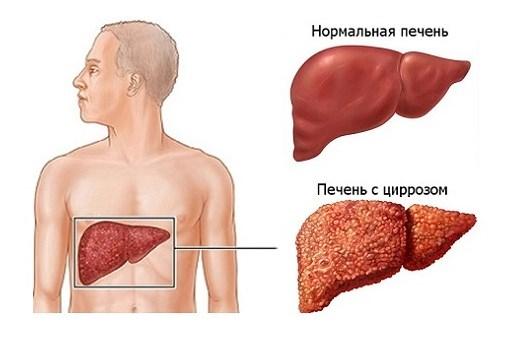 Гипотония при циррозе печени