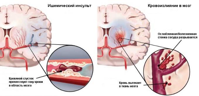 Инсульт как осложнение гипертензии