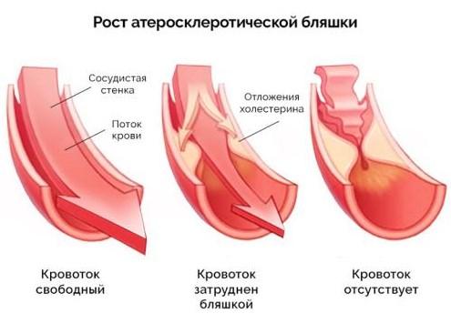 Формирование атеросклеротической бляшки