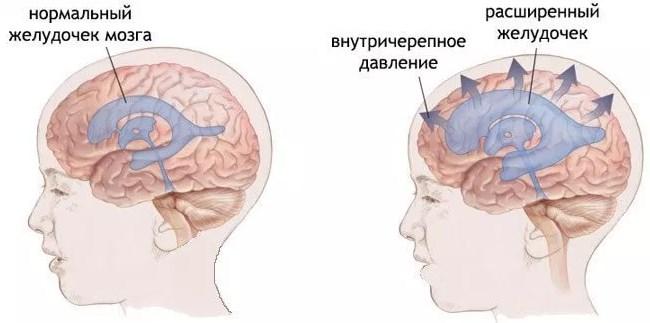 Внутричерепная гипертензия у ребенка