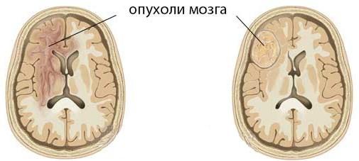 Новообразования в головном мозге