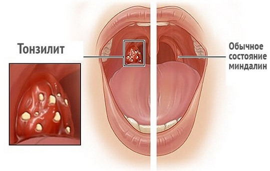 Гипотония развивается на фоне тонзиллита
