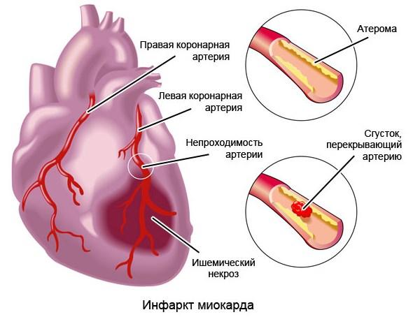 Инфаркт как осложнение гипотонии