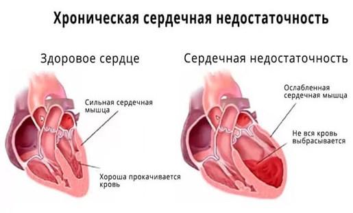 Гипотония при сердечной недостаточности