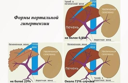 Виды билиарной гипертензии