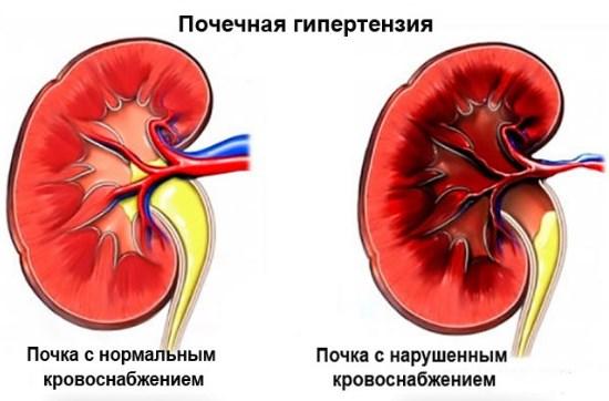 Почечная гипертония