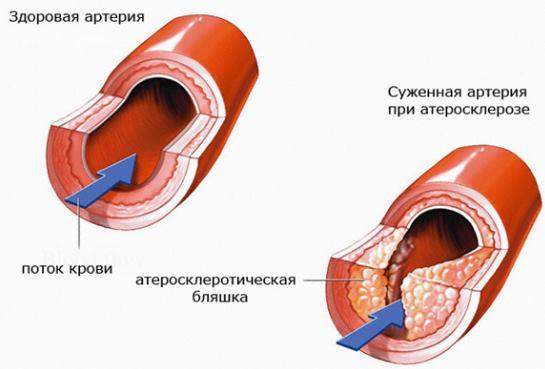Атеросклероз при низком давлении
