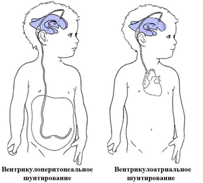 Шунтирующая операция при гидроцефалии