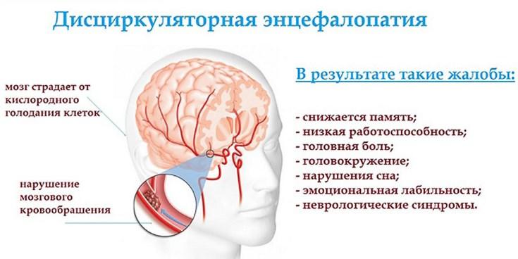 Дисциркуляторная энцефалопатия при гипертонии