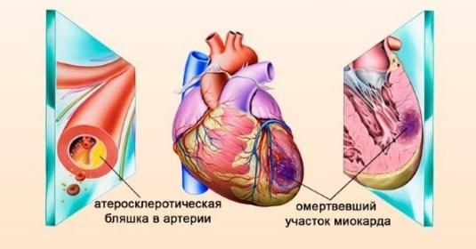 Инфаркт миокарда при низком давлении