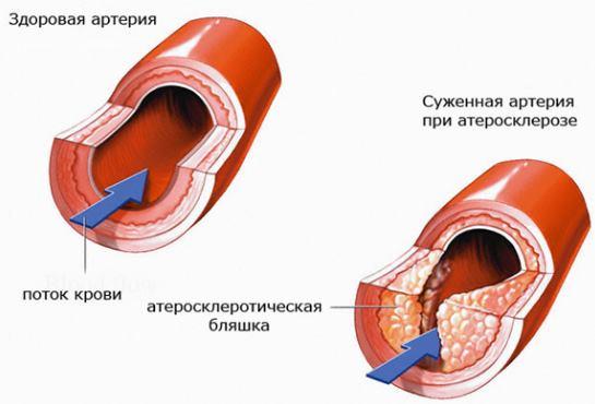 Изображение - Повышена верхняя граница давления что это значит vysokoe-verhnee-davlenie-pri-normalnom-nizhnem-3