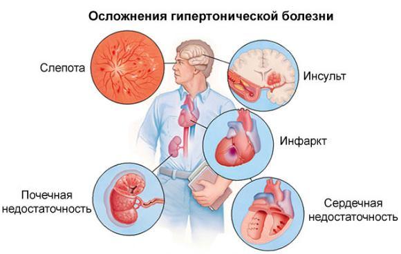 Изображение - Повышена верхняя граница давления что это значит vysokoe-verhnee-davlenie-pri-normalnom-nizhnem-4