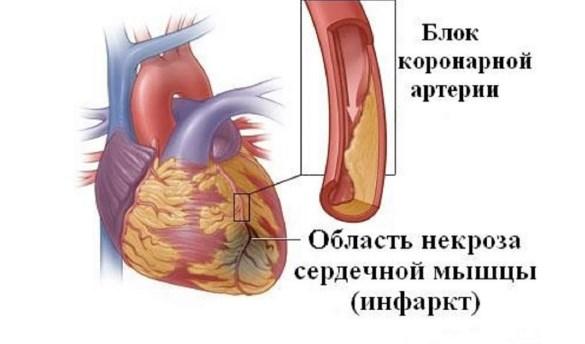 Инфаркт при злокачественной гипертензии