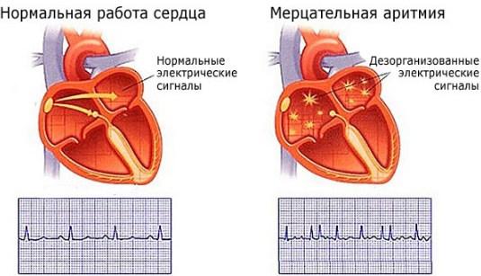 Аритмия при гипертонии
