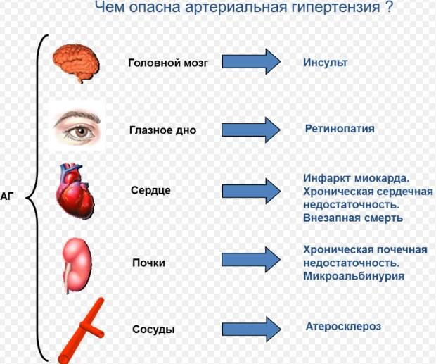 Что такое артериальная гипертензия