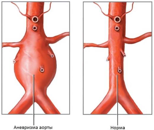 Аневризма аорты как осложнение ГБ