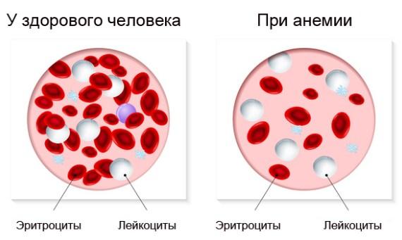 Гипотония при анемии