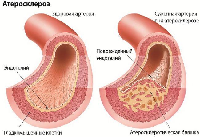 Атеросклероз сосудов при гипертонии