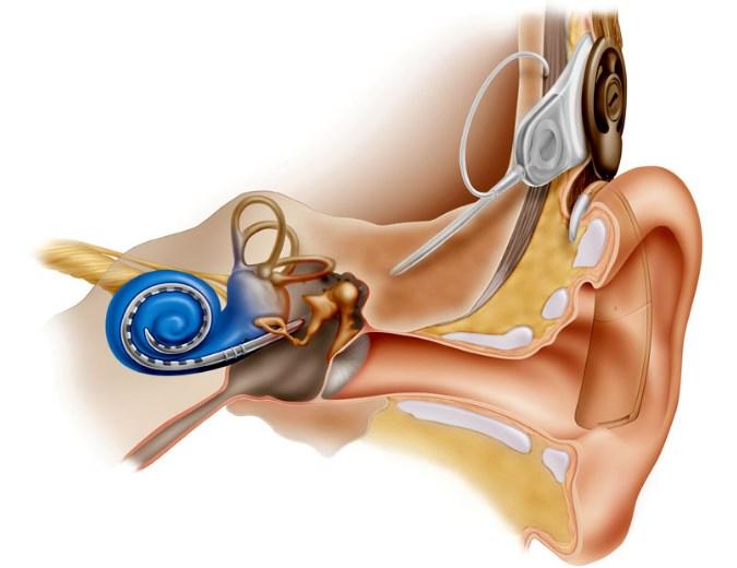 Вестибулярный имплант