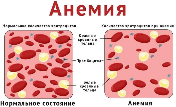 Головокружение от анемии