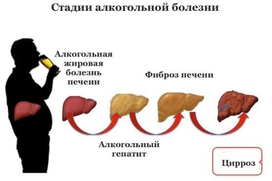 Последствия чрезмерного потребления алкоголя