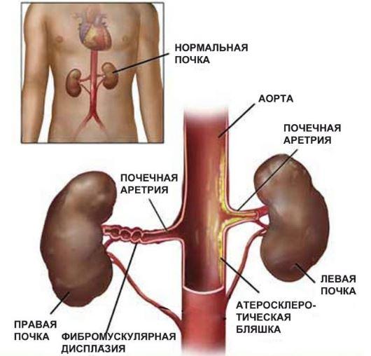 Фибромускулярная гиперплазия