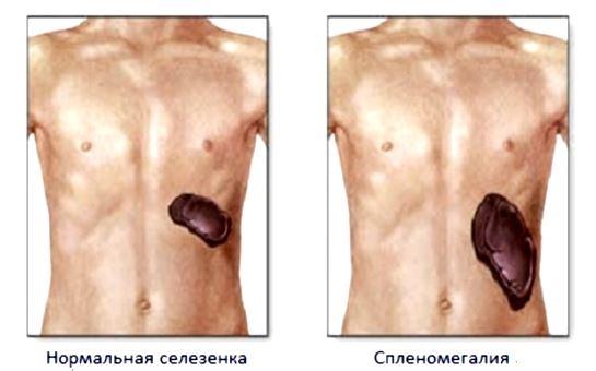 Спленомегалия при портальной гипертензии