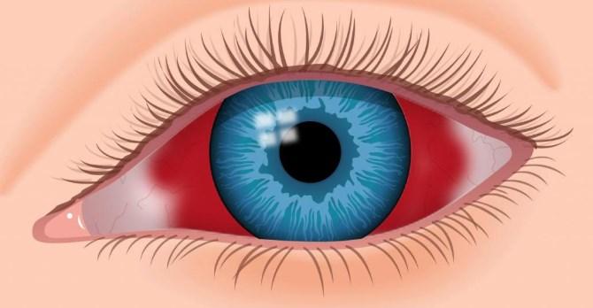 Кровоизлияние в глазное яблоко