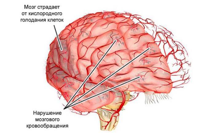 Признаки и лечение гипертензивной энцефалопатии