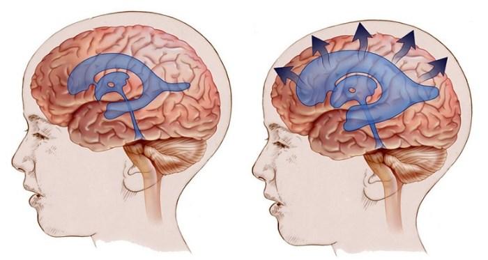 Повышенное внутричерепное давление – симптомы и лечение у взрослых и подростков