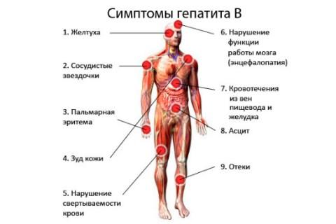 Проявления гепатита