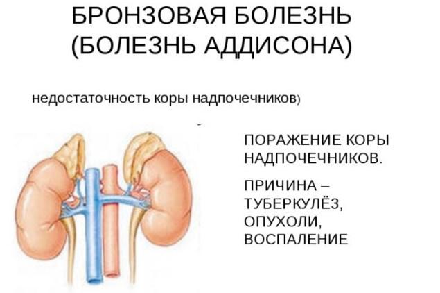 Изображение - Поднялось давление и пульс почему vysokij-puls-pri-vysokom-davlenii-3
