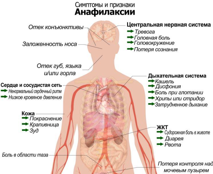 Анафилактический шок