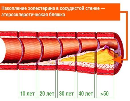 Отложения холестерина в сосуде