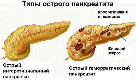 Изображение - Как понизить высокий пульс при нормальном давлении kak-ponizit-puls-v-domashnih-usloviyah-3