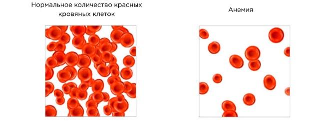 Повышенный пульс при анемии