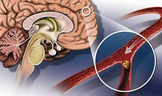 Дистония сосудов головного мозга