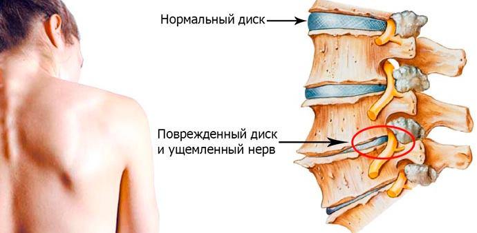 Высокое нижнее давление при остеохондрозе