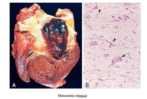 Гистология миксомы