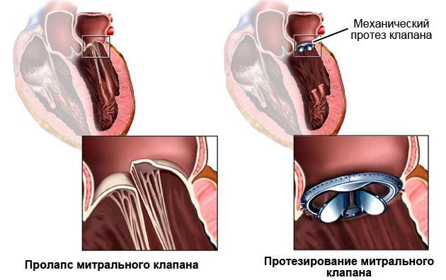 Вальвулопластика митрального клапана