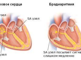 Синусовая брадиаритмия сердца у ребенка и взрослого
