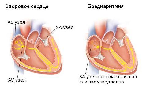 брадиаритмия сердца