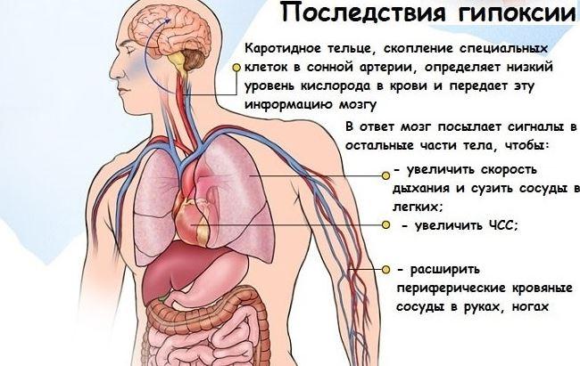 Гипоксия при брадиаритмии