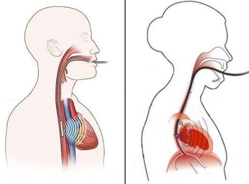 Чрезпищеводное электрофизиологическое исследование сердца