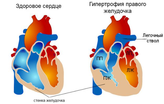Признаки гипертрофии правого желудочка и ее лечение