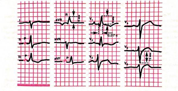 ЭКГ картина гипертрофии правого желудочка