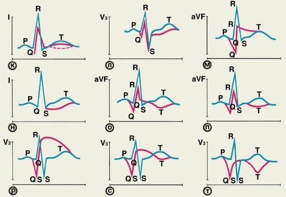 ЭКГ картина гипоксии миокарда