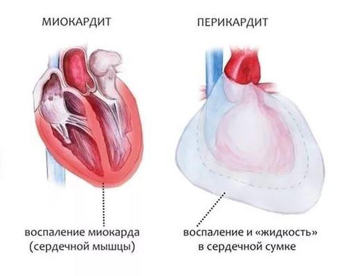 Миокардит и перикардит